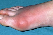 PRinc_photo_of_inflamed_gout_toe