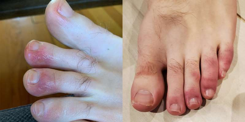 covid-toes